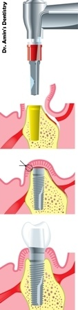 Dental implants may be the right answer to loss of only a few teeth for those who would like to be able to eat, speak and smile with ease and confidence.  #Dental_implants  http://dratmamin.com/dental-services/dental-implants/