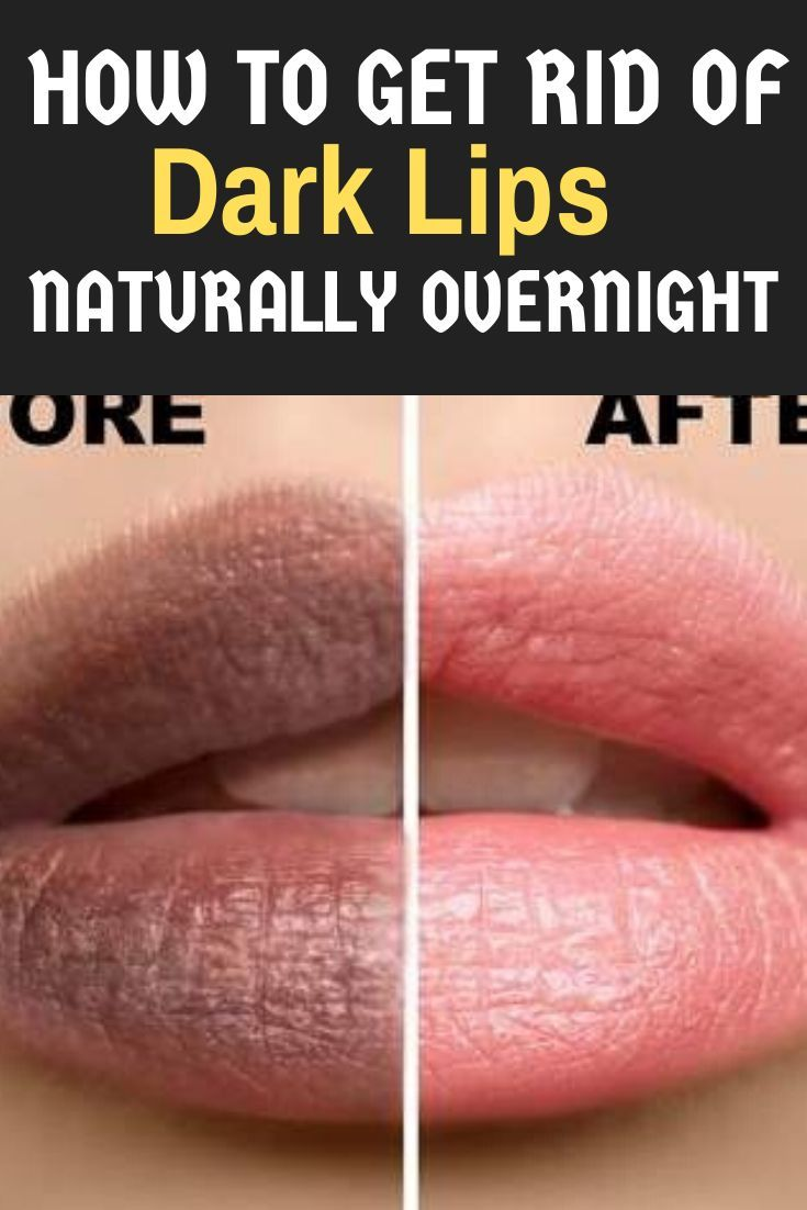 How To Get Rid Of Darkness Around Mouth Overnight