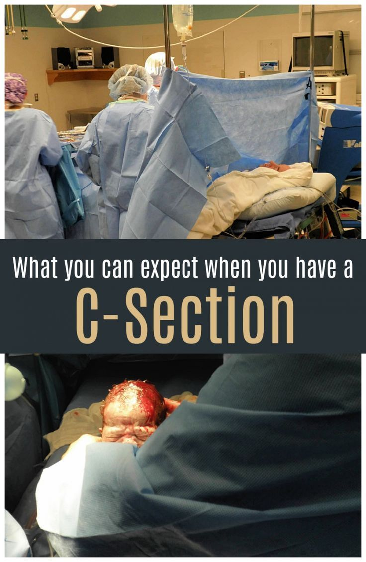 What to expect when you have a cesarean delivery #Gross #Creation #CSection   – Kids Ideas and Recipes