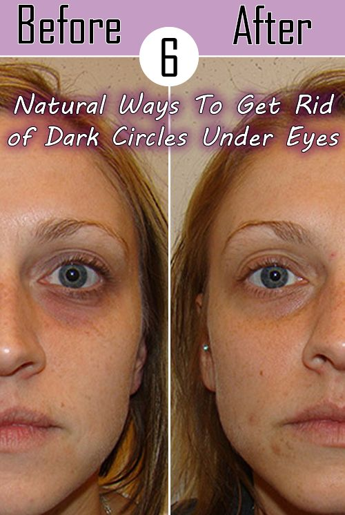 6 Natural Ways To Get Rid of Dark Circles Under Eyes | Style Idea