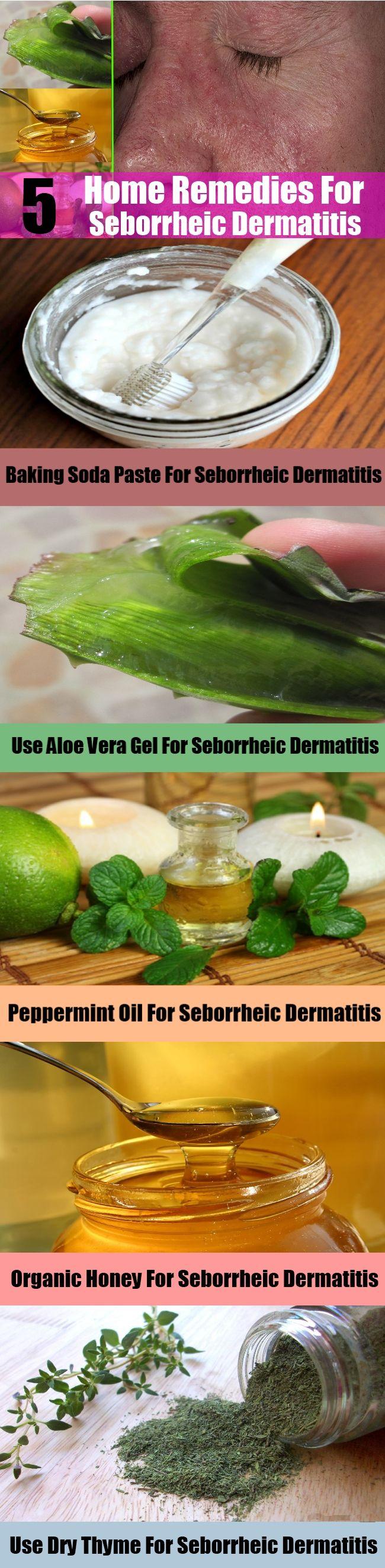 sebborheic dermatitis