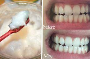 kokosöl bei zahnprobleme- Kokosnussöl kann schnell alle Zahnprobleme lösen… u …