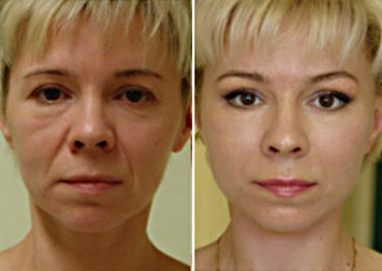 Fără botox – minus 15 ani în mod garantat