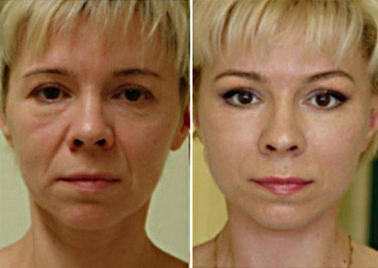 Mindenféle botox nélkül mínusz 15 év garantált
