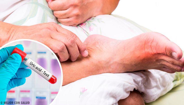 La acumulación de ácido úrico en el organismo puede causar trastornos inflamatorios y cálculos renales. Descubre cuáles son sus causas principales.