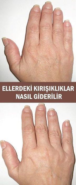 Ellerdeki Kırışıklıklar Nasıl Giderilir
