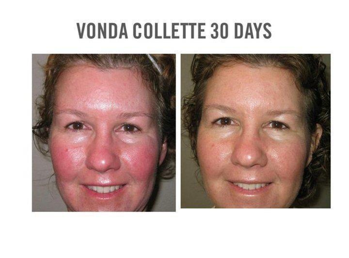 Rosacea , redness, irritation, all these skin conditions can be treated, without a prescription