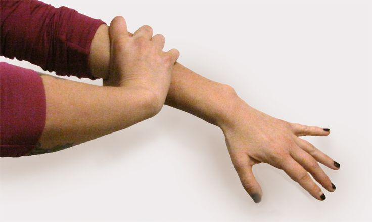 Example of gripping the fascia and pushing