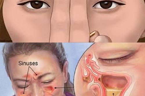 How to Clear Your Sinuses in Seconds Using Nothing but Your Fingers Blocked sinuses are a common problem for people of all ages. It is caused by numerous different reasons like weather changes colds or allergies. Most people treat this problem with medications but there are other better ways to relieve the pressure which you feel from sinus blockage These natural methods dont include any chemicals unlike