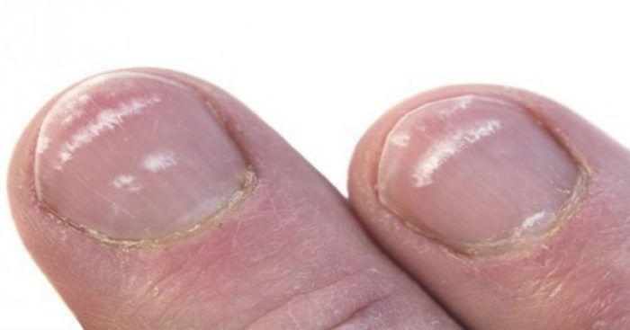Λευκονυχία: Γιατί Έχετε Λευκά Σημάδια Στα Νύχια Σας;  #Υγεία