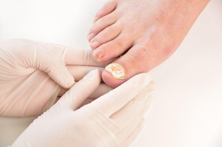 Contre les mycoses sur l'ongle, dégainez votre curcuma ! noté 3.75 - 4 votes Il est difficile de faire moins glamour qu'une mycose sur un ongle de pied… surtout avec les chaleurs qui arrivent et l'envie de glisser ses pieds dans des sandales pratiques ou des tongs ! Et sur les mains, ce n'est malheureusement pas...
