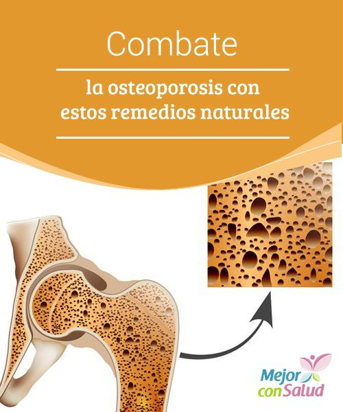 Combate la osteoporosis con estos remedios naturales   Añadir un poco de vinagre a tu ensalada te ayuda a prevenir la aparición de la osteoporosis. Aquí te hablamos de este y otros remedios.