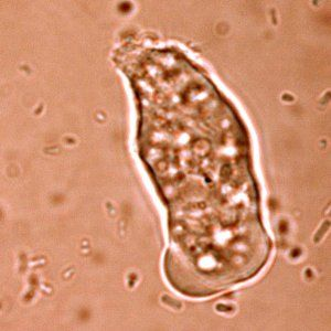 This is Entamoeba histolytica, the organism that causes amoebic dysentery.