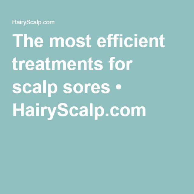 The most efficient treatments for scalp sores • HairyScalp.com