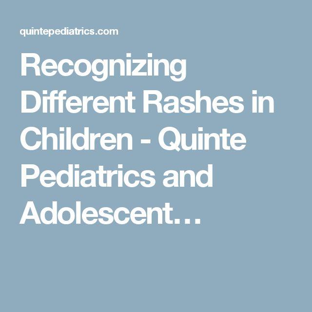 Recognizing Different Rashes in Children - Quinte Pediatrics and Adolescent…