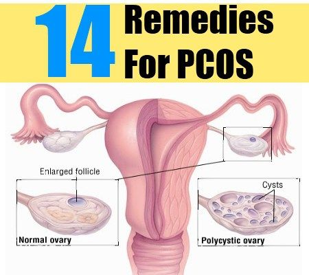 14 Herbal Remedies For PCOS - Herbs For The Treatment Of Polycystic Ovary Syndrome | Search Herbal & Home Remedy