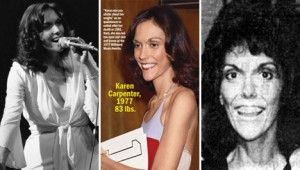 """Karen Carpenter, and singer and drummer of """"The Carpenters"""" died in 1983 at the young age of 32.  Her passing was said to be caused by heart failure due to years of struggling to survive anorexia.  Her death caused a surge of awareness for eating disorders."""