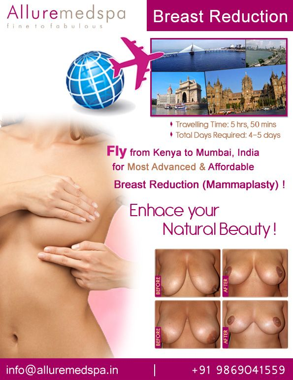 Reduction graft free nipple breast with