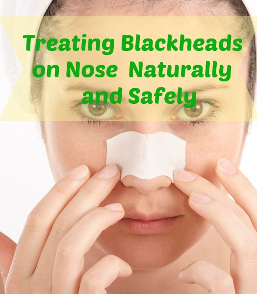 Treating #Blackheads on Nose Naturally and Safely #skincare #beautytips
