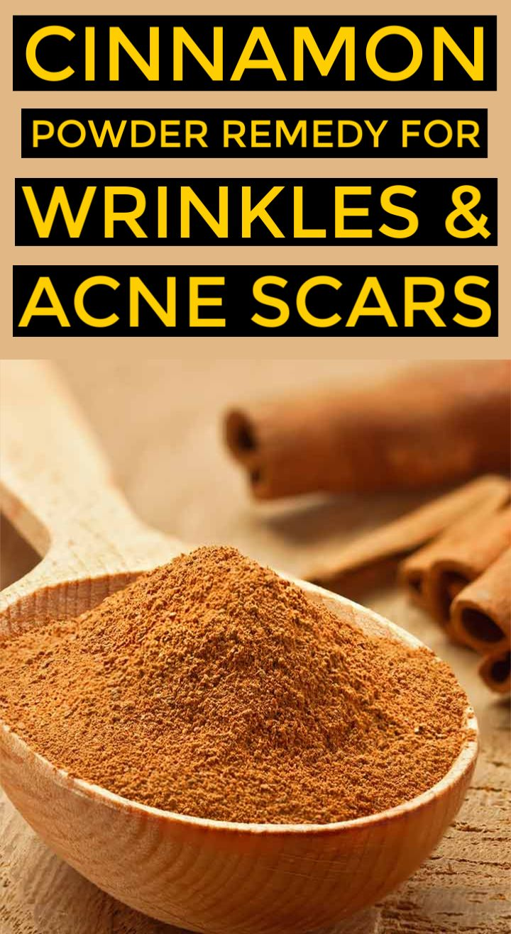 Cinnamon Powder home remedies for wrinkles and acne scars