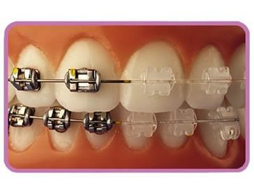 Clear porcelain braces Vs metal braces (scheduled via http://www.tailwindapp.com?utm_source=pinterest&utm_medium=twpin&utm_content=post12226282&utm_campaign=scheduler_attribution)