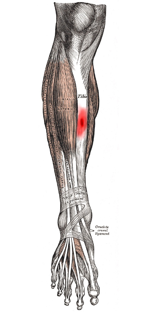 9 best Injuries images on Pinterest | Running injuries, Athletic ...