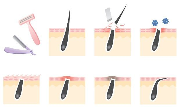 How to Get Rid of Ingrown Hair? In this article, we are discussing several methods to get rid of ingrown hair. Did you notice some painful, inflamed and red outgrowth on your skin? They are an ingrown hair. They are the result of frequent shaving, waxing and using various other methods to remove hair on the regular basis. They... #AvoidIngrownHair, #BestMethodsToRemoveIngrownHairFast, #CureIngrownHair, #ExposeTrappedIngrownHair, #GetRidOfIngrownHair, #HomeRemediesToGetRidOf…