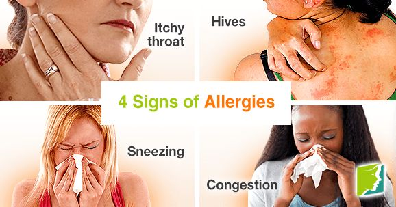 4 signs of allergies.