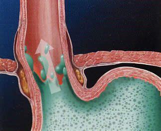 http://gurukesehatan.wordpress.com/2014/09/17/obat-tradisional-untuk-penyakit-gerd/