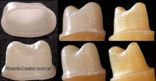 preparacion dentaria para corona circonio ceramica dental cercon