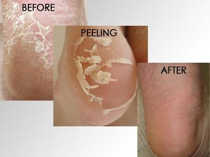 Baby Feet Before and After results.