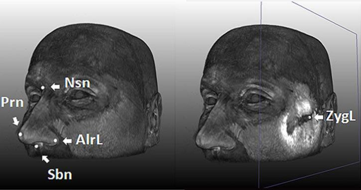 Scientists used 3D MRI scans to look at various facial landmarks, confirming five genes that are responsible for various face-shape traits. They reported their findings online Sept. 13, 2012, in the journal PLoS Genetics.