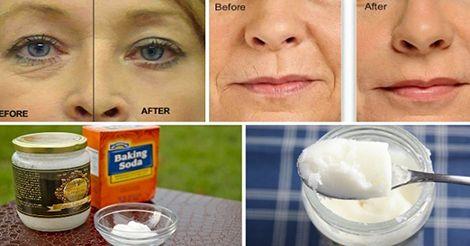 Como eliminar arrugas, flacidez en la cara y acné de manera natural