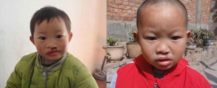 Leonard, en familia de acogida en la provincia de Yunnan, fue operado hace poco de su fisura labial. Pensamos que está guapísimo!