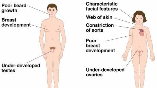 Androgen Insensitivity Syndrome Symptoms Signs