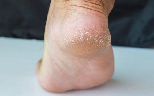 Os calcanhares rachados são um sinal de desidratação e descuido nos pés, e costumam ser resultado do uso frequente de sapatos abertos ou de andar descalço.