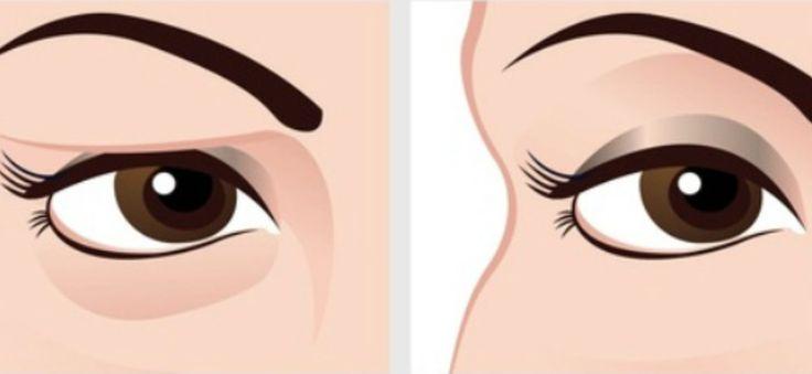 A petyhüdt szemhéjak nem túl vonzóak. A smink sem mutat jól a megereszkedett szemhéjakon és még idősebbnek is nézünk ki, ha a szemhéjunk már nem[...]