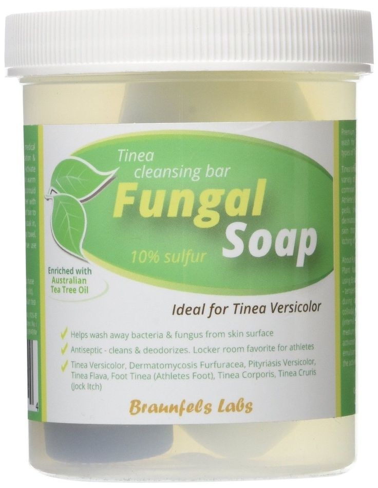 Fungal Soap - Tinea Versicolor Tinea Corporis Foot Tinea (Athletes Foot) Tine...