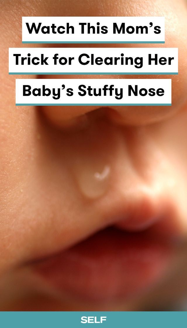 Baby S Stuffy Nose Baby Remedies Runny Nose Remedies Baby Cold Remedies