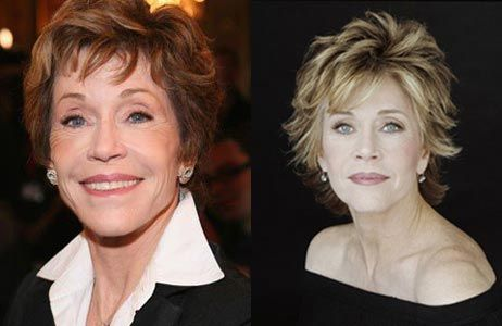 Jane Fonda Plastic Surgery Before & After