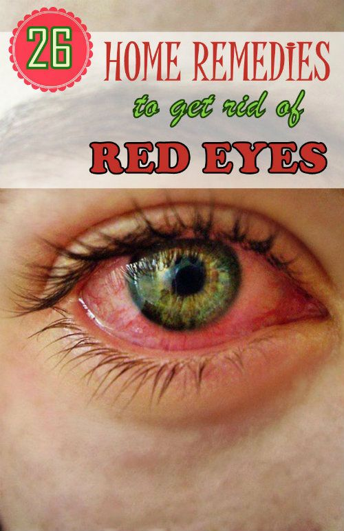 26 Effective Remedies to get rid of Red Eyes. #homeremedies #eyecare #redeye