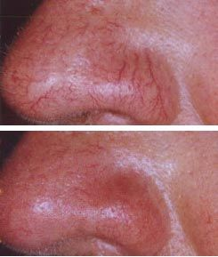Top Essential Oils for Spider Veins (Natural Treatment & Removal)