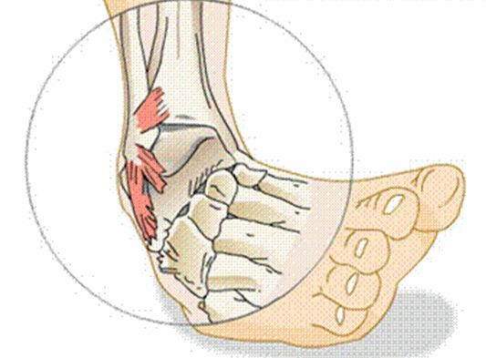 Ligaments can simply be stretched without any tearing (grade 1 sprain) or completely rupture (grade 3).