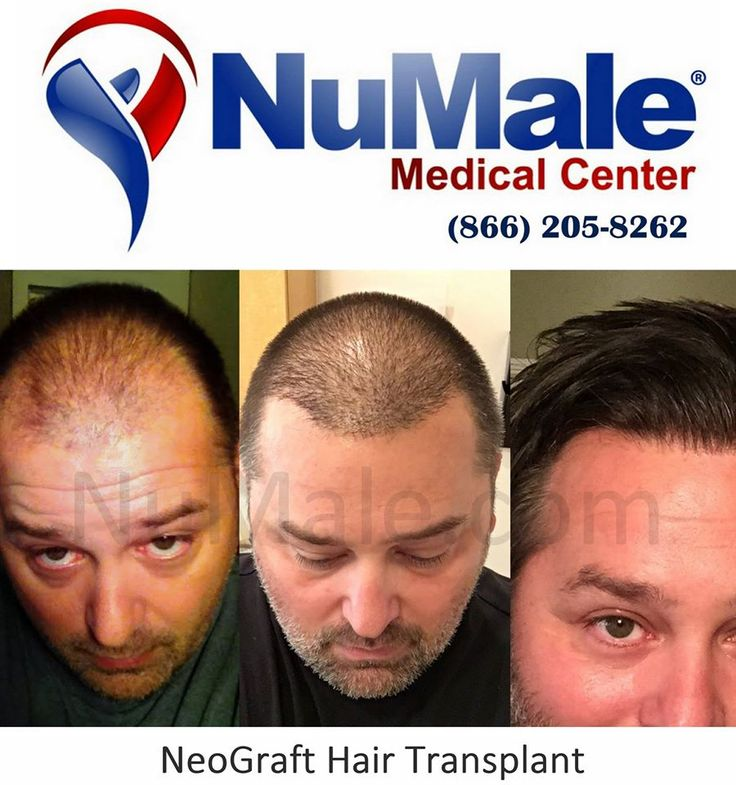 NeoGraft Hair Transplant.  Fast Recovery Minimally Invasive No Linear Scar Affordable and Cost Effective Schedule Your Consultation  (866) 205-8262 http://www.numalemedical.com/services/hair-restoration.html . . . . ‪#‎HairLoss‬ ‪#‎HairGrowth‬ ‪#‎Alopecia‬ ‪#‎ThinningHair‬ ‪#‎Balding‬ ‪#‎BaldSpots‬ ‪#‎HairTransplant‬ ‪#‎Neograft‬ ‪#‎Fue‬ ‪#‎HairReplacement‬ ‪#‎ThinHair‬ ‪#‎Hair‬ ‪#‎ThickHair‬ ‪#‎HairDoctor‬ ‪#‎CurlyHair ‪#‎StraightHair‬ ‪#‎BlondHair‬ ‪#‎Brunette‬