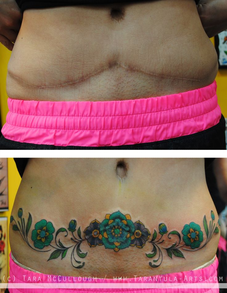 Tummy Tuck Tattoo New Scar Tattoos Designs Ideas and