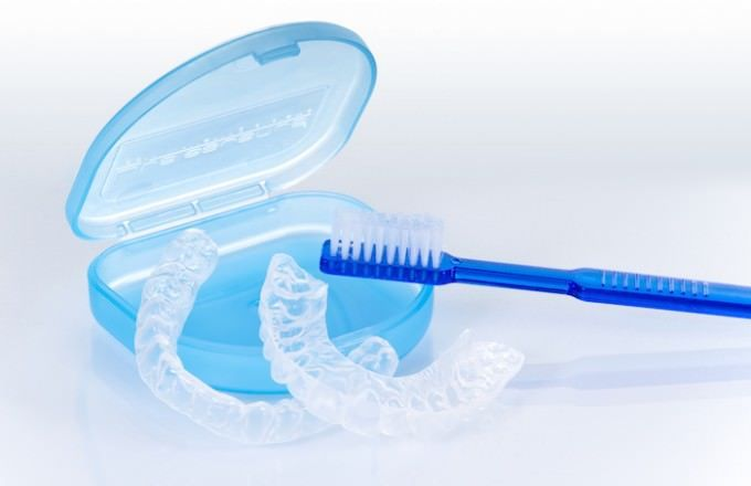 How To clean retainers. Useful Information! (Apparently I have been doing it all wrong!)