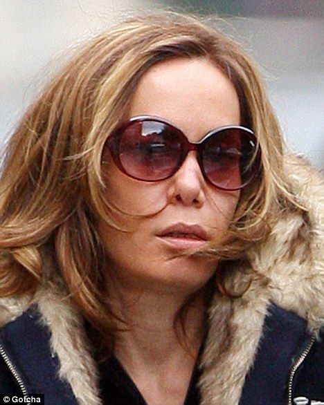 Just what has happened to Tara Palmer-Tomkinson's nose now?