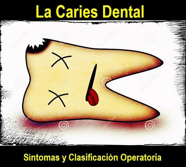 La Caries Dental: Síntomas y Clasificación Operatoria | OVI Dental