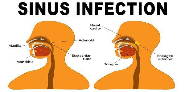 Sinusitis is an inflammation or swelling of the tissue lining the sinuses. The main symptoms of sinusitis are: Runny nose Los of smell Facial pain or pressure Stuffed-up nose Cough or congestion Fever Here are some natural remedies for sinusitis: Saline water You need to add ¼ teaspoon of salt in a cup of warm…