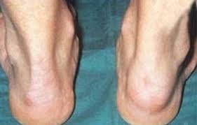 Image result for remicade